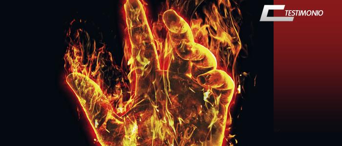 burned hands belaying atc climbing